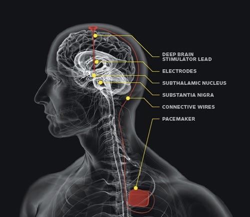 dbs_brain