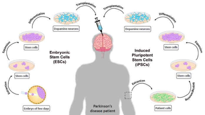 parkinson  Substituir células no cérebro humano poderia acabar com a doença de Parkinson fig1 liste